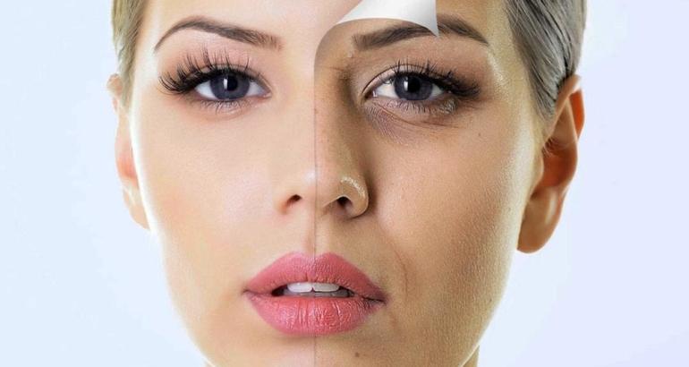 Skin Peels – Glycolic, Lactic and Salicylic