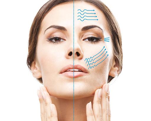 HiFu Ultrasound Face lift