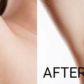 before-and-after-laser-hair-removal